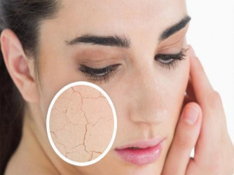 Công dụng giảm rạn da